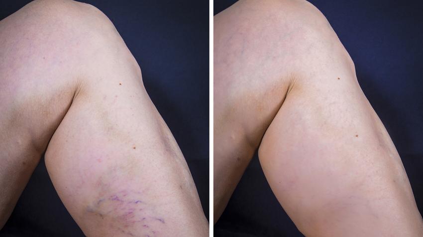 lábak fel a visszér az alsó végtagok mély visszér tüneteinek kezelése