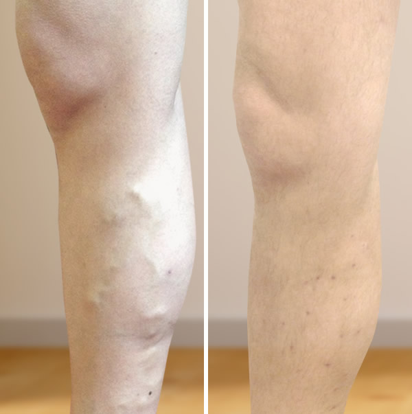 lábak műtét után visszér fotó Janine és visszér