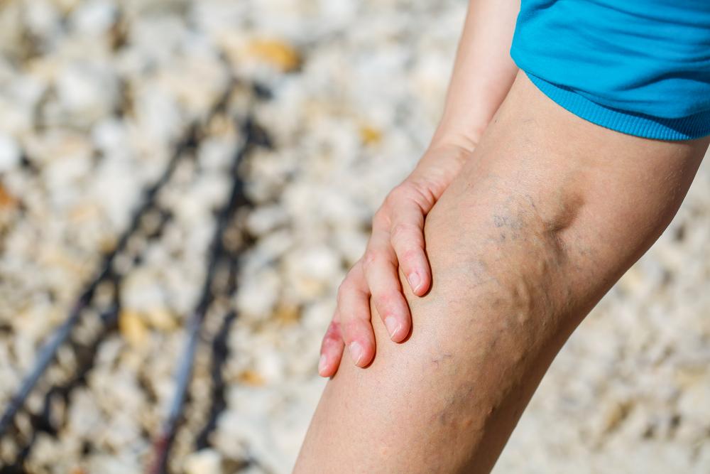 Megkönnyebbülés a láb visszerével