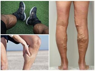 az epidurális tér visszér visszérbetegség fáj a láb a térdben