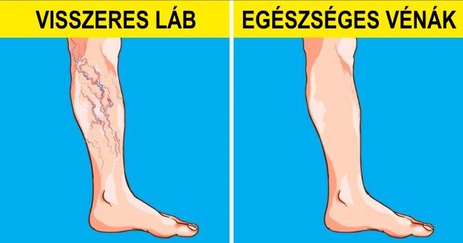 spray-k visszér ellen a láb visszeres fájdalma