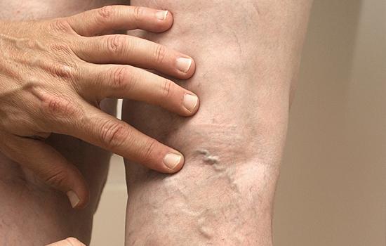 gyógyítható-e a visszér csillag a láb varikózisán