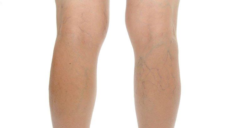 omega a visszér ellen hogyan kell kezelni a visszereket a lábakon