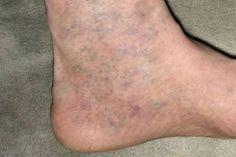 a láb fáj a kismedence visszérével a lábakban lüktet a visszér