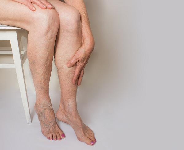 a visszér kezelése császármetszés után visszér fájdalmas fájdalom