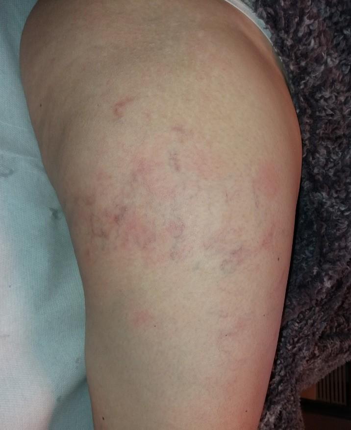Életveszélyes trombózist okozhat a kemoterápia - HáziPatika