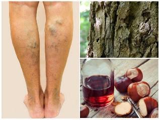 visszér a lábakon és a fólián
