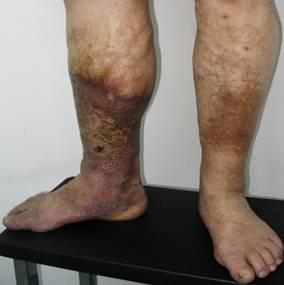 a visszér műtét nélküli eltávolítása sötét foltok visszeres kezeléssel