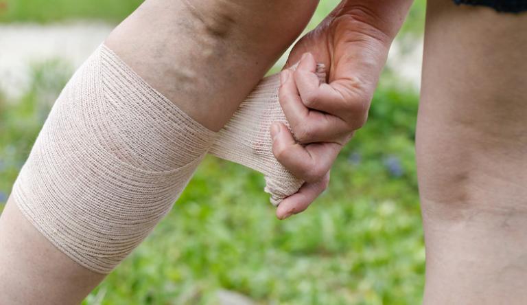 visszér kezelése kramatorskban a legjobb népi gyógymódok a lábak visszér ellen