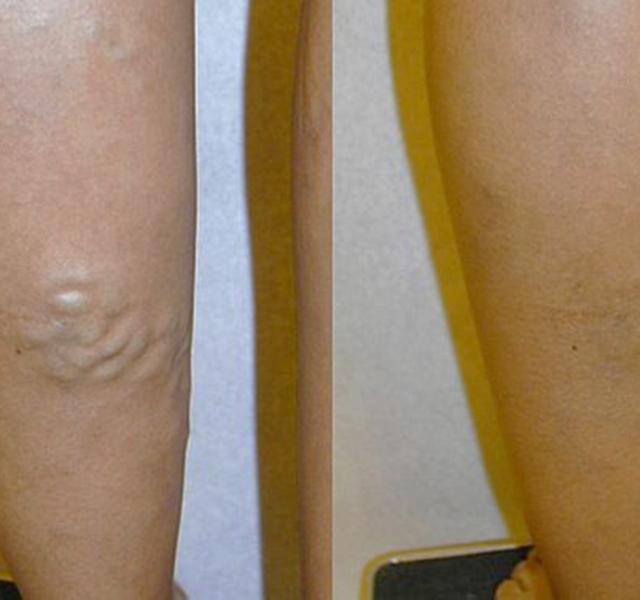 visszér a tenyérben hiperpigmentáció visszeres kezeléssel