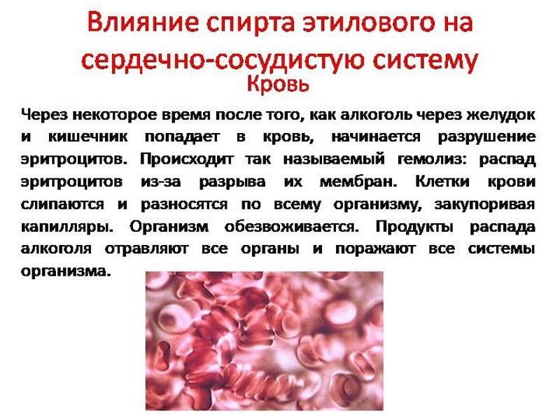 Phlebodia prosztatagyulladásból