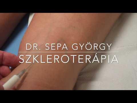 visszér kezelése szkleroterápia pigment a visszér ellen
