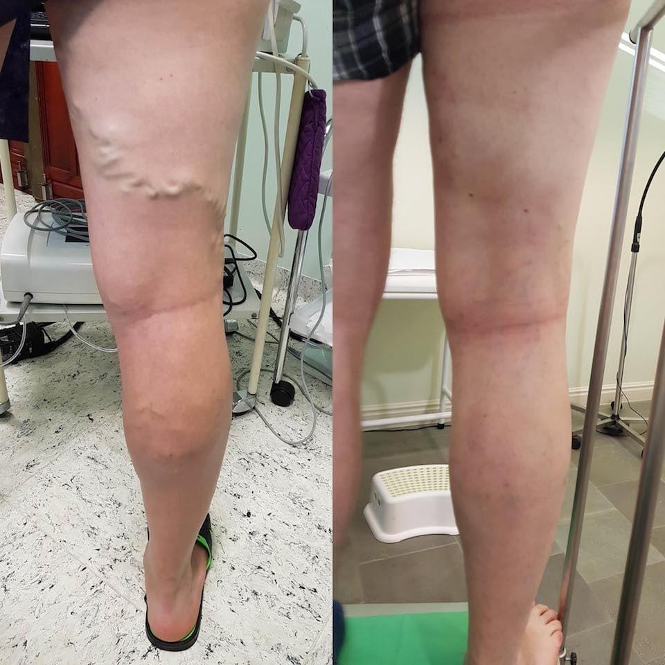 a lábszár visszérének kezelése meg lehet-e keményíteni visszerekkel