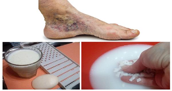Visszérbetegség - Kiegészítő és alternatív terápiák