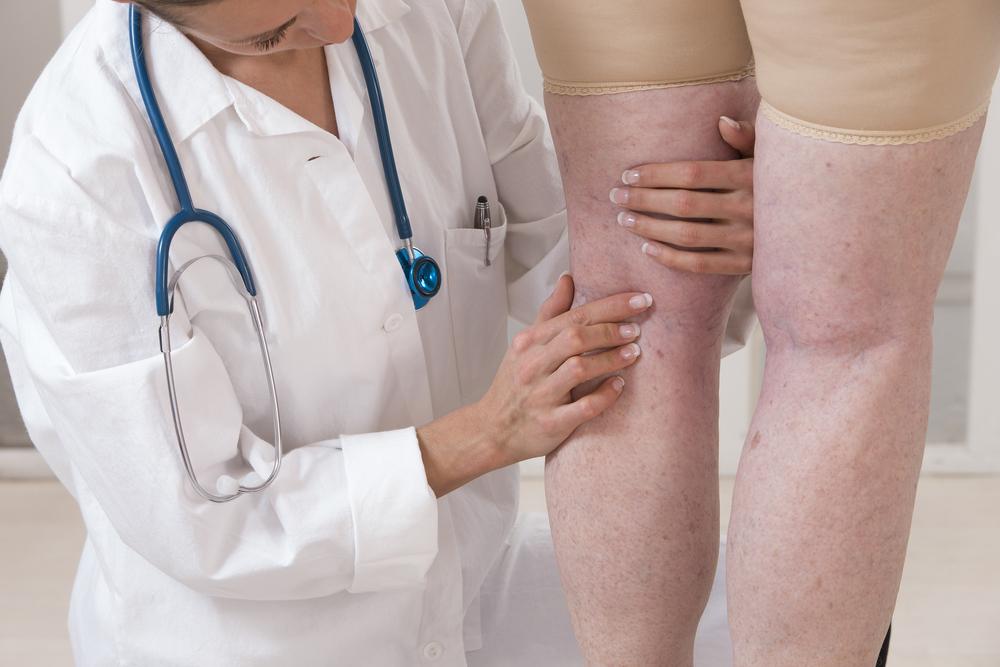 visszér tünetek kezelés megelőzése